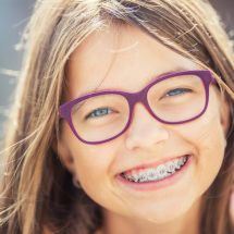 Why a Bonded Retainer is a Good Option After Braces