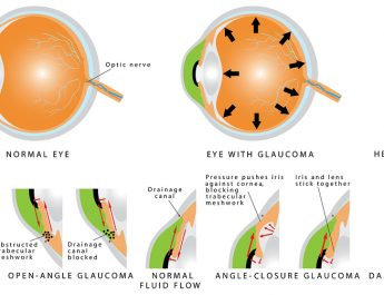 5 Questions to Ask Before Starting Glaucoma Treatment
